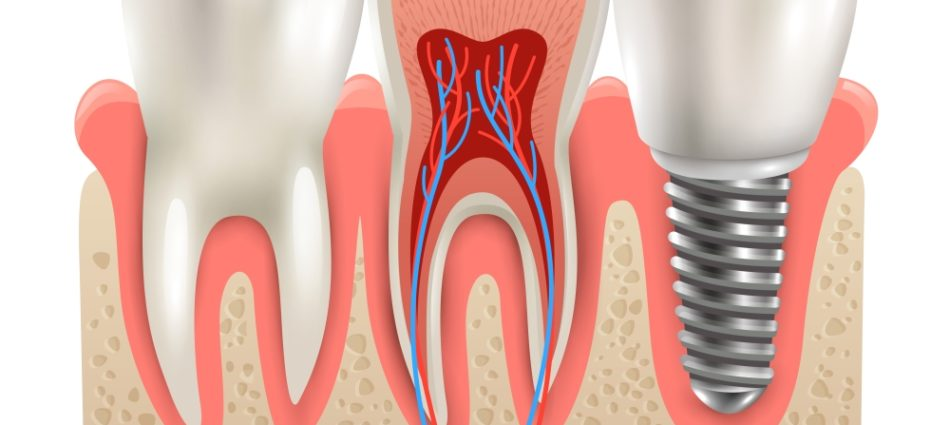 Dental implant and real tooth anatomy closeup cut away section model side view realistic vector illustration